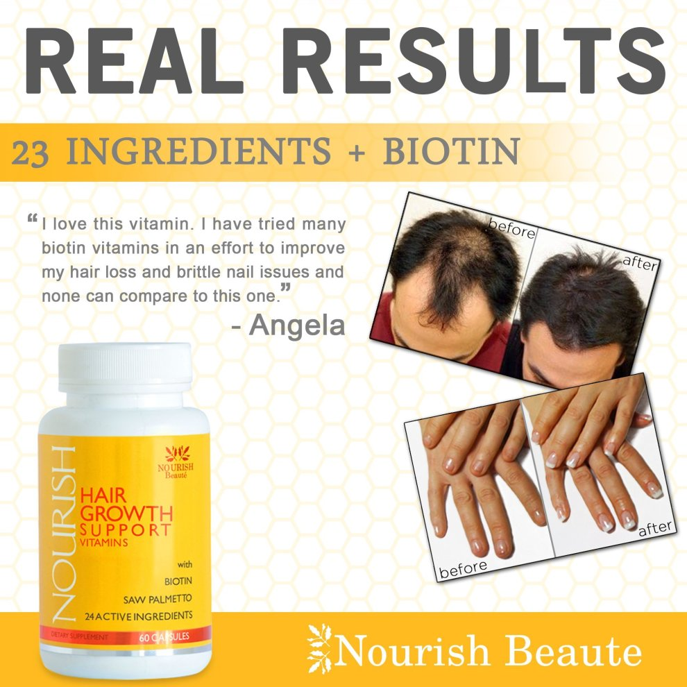 Hair Growth Vitamins >> Biotin Hair Growth Vitamins With Powerful Dht Blockers Guaranteed Results To Reduce Loss And Improve Skin And Nails